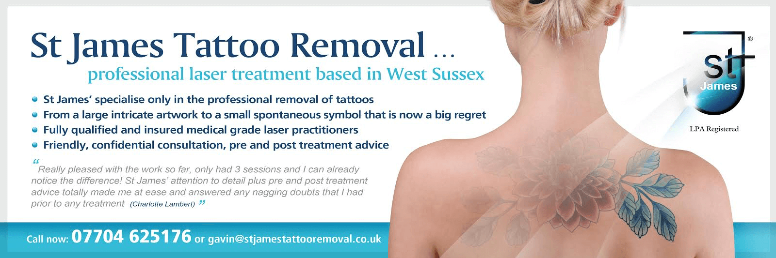 Laser tattoo removal st james tattoo removal for Tattoo removal lasers
